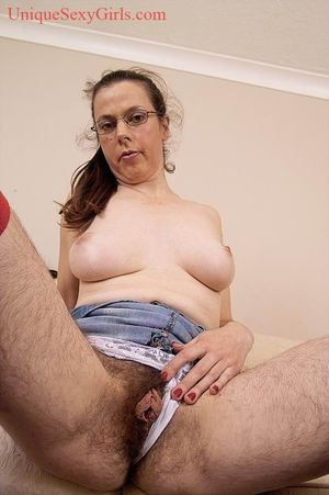 ugly woman with abnormal hairy body -..