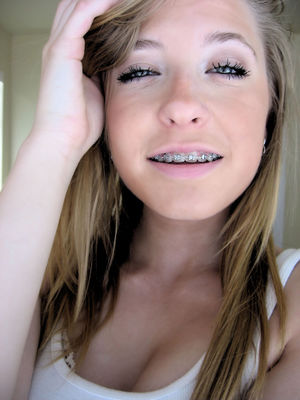 Girls with braces? Anyone? -..