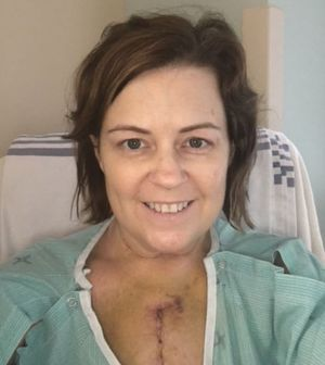 45-Year-Old Angie MacAull Surprised By..