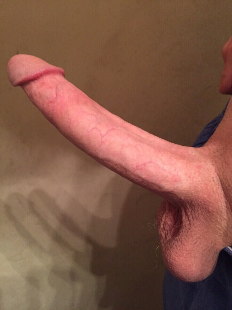 White spots on my penis